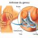 arthrose-genou-traitement-naturel-biologiquement-hervy-david-vy-thinh-ngoc-thi